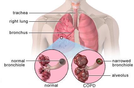 اکسیژن ساز برای بیمار