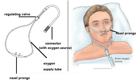 نحوه کارکرد دستگاه اکسیژن ساز